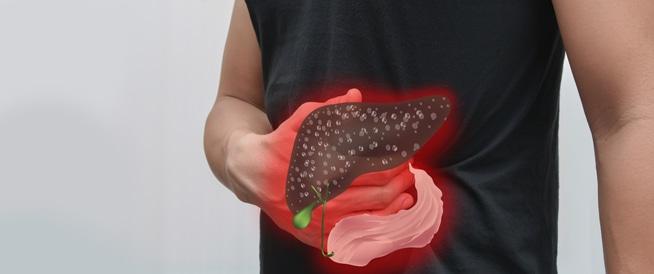 """أعراض التهاب الكبد """"ب"""""""