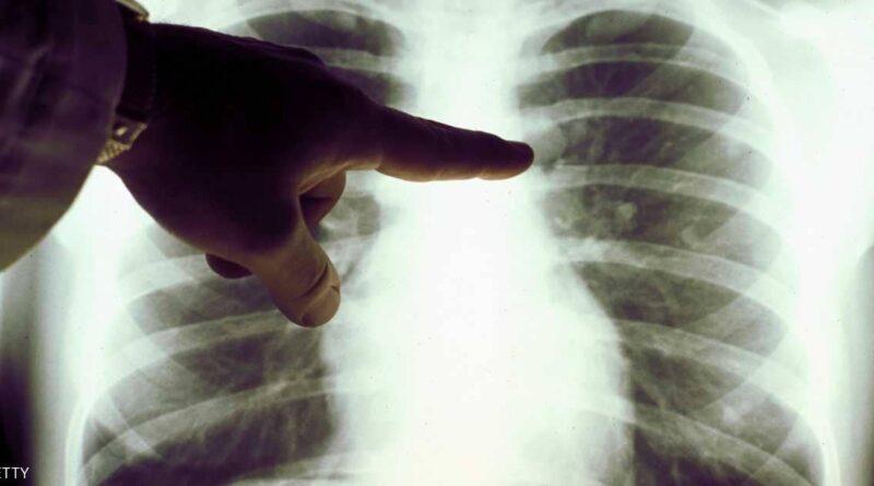 ما علاقة حجم الأصابع بسرطان الرئة؟؟!!